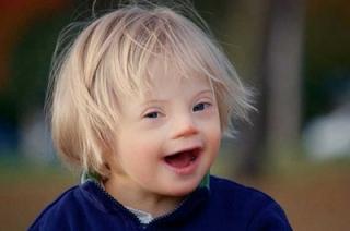 Сегодня отмечается Международный день человека с синдромом Дауна