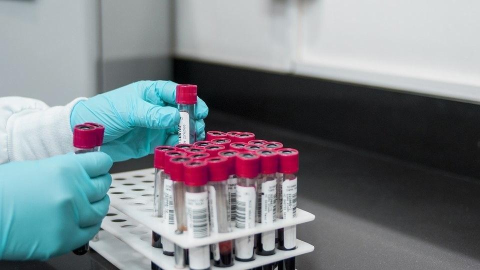 анализа на коронавирус